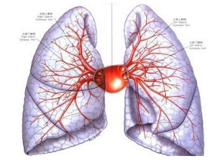 200多种疾病可致肺纤维化 沪肺科医院推呼吸操助康复