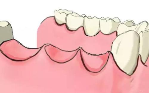 缺牙者容易老年痴呆、脑中风? 处理缺牙需先治好牙周病