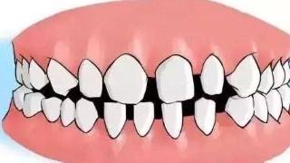 种牙为何有差距?谁种才是关键!市民如何正确选择专家、口腔机构有玄机!