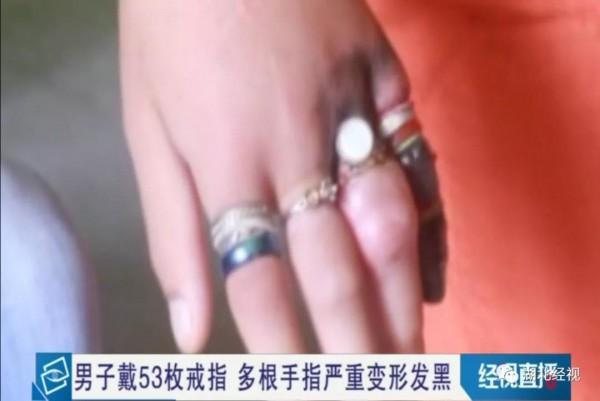 看着都疼!男子一口气戴了53枚戒指!最后可能要截肢...