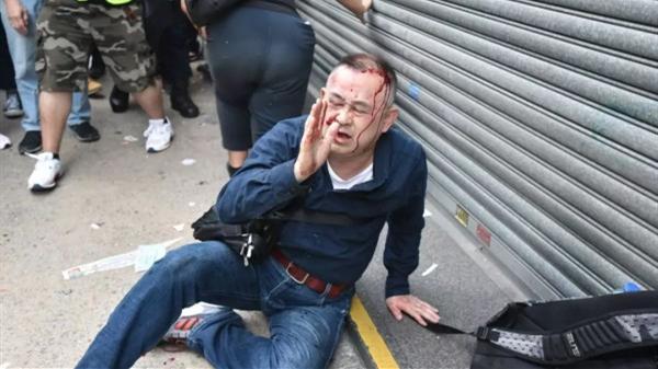 日本游客香港街头遇袭,无差别攻击显示恐怖主义狂热!