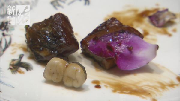 吐!有人在沪上知名饭店的红烧肉里吃出两颗假牙,店家的态度绝了~